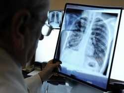 у литві вчителька заразила туберкульоз 77 школярів