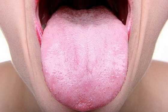 хвороби, про які може розповісти мова