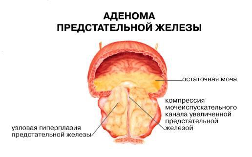 Фізичні вправи при аденомі простати